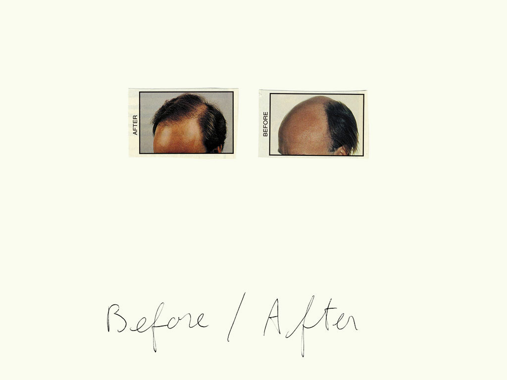 Claude Closky, 'Before / After (dark hair)', 1997, black ballpoint pen and collage on paper, 32 x 24 cm.