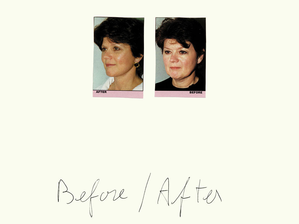 Claude Closky, 'Before / After (woman)', 1997, black ballpoint pen and collage on paper, 32 x 24 cm.